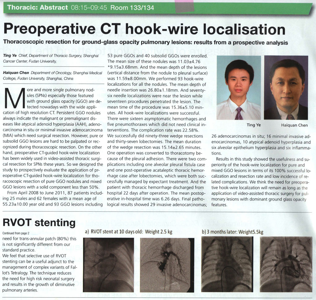 Preoperative CT hook-wire localisation
