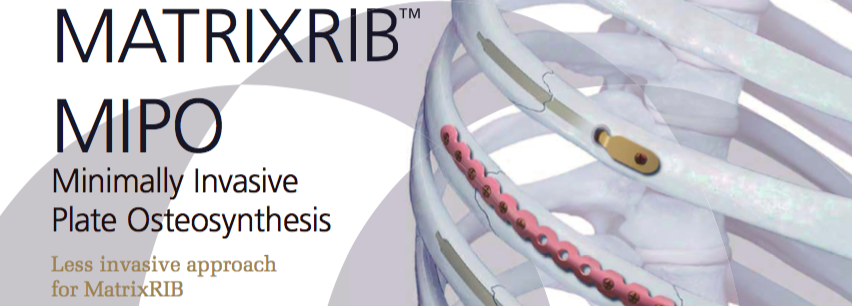MATRIXRIBTMMIPOMinimally InvasivePlate OsteosynthesisLess invasive approach for MatrixRIB